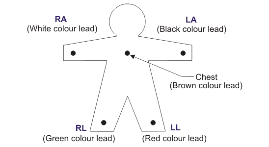 bipolar limb leads or standard leads