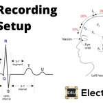 ECG Recording Setup (Block Diagram and Waveform)